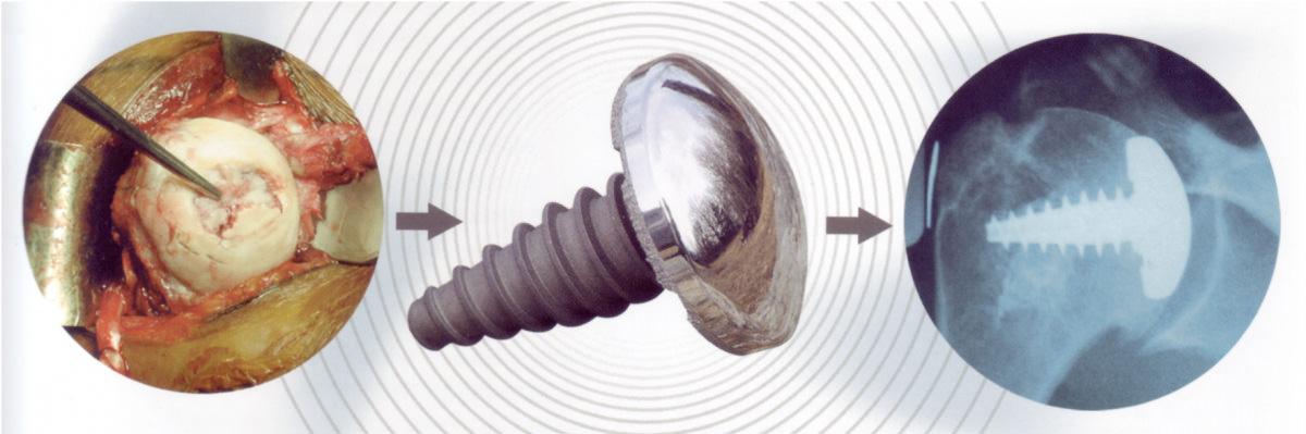 Endoprothese Schulter Teilersatz